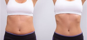 Liposuction FAQ: Your Top Questions Answered
