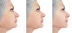 Kybella: Bid Your Double Chin Farewell