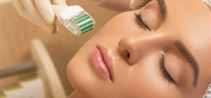 8 Things You Should Know Before Trying Microneedling