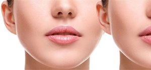 Using Dermal Fillers to Add Volume to Your Lips