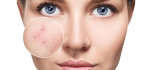 Acne and Acne Scarring: 3 Skin Care Treatments That Actually Work