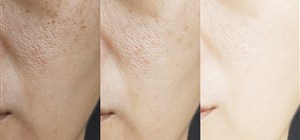 Want to Sculpt a Younger You? Sculptra Treatments Are Your Go-To Tool